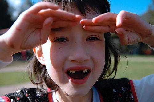 Gappy mouth